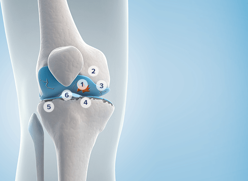 Inner view of an osteoarthritis of the knee